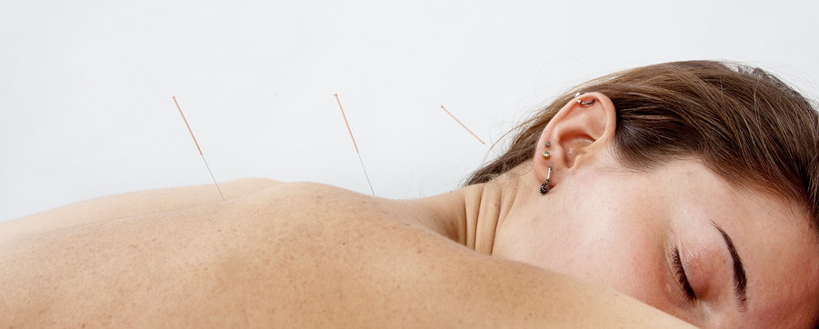 acupuntura-sis